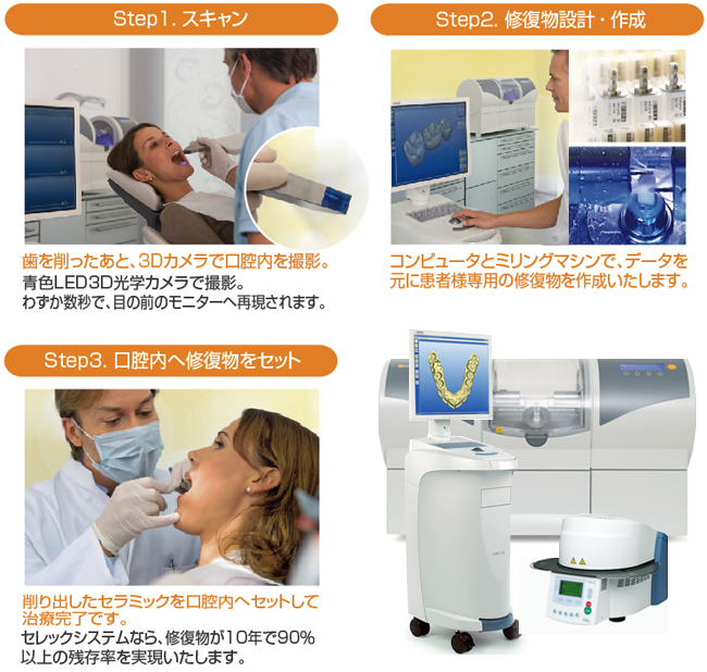 cerec_machine